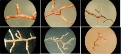 Absorptive roots from various tree species Image: David Eissenstat/Penn State