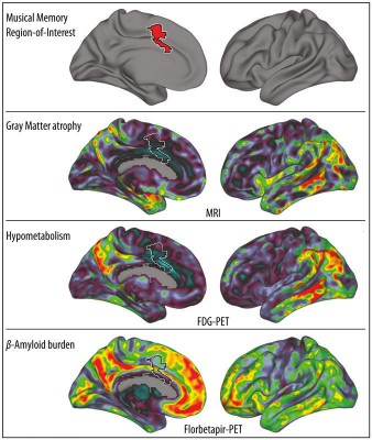 The region for musical memory (top: red, otherwise surrounded by a white border) compared with other regions of the brain of an Alzheimer's patient: areas with maximum neuronal loss (2nd row from above), decrease in metabolism (3rd row from above.) And amyloid protein aggregations (bottom row) are red, areas with minimal changes are shown in purple (in the left and right column, the left brain is shown from different perspectives, respectively). © MPI f. Human Cognitive and Brain Sciences