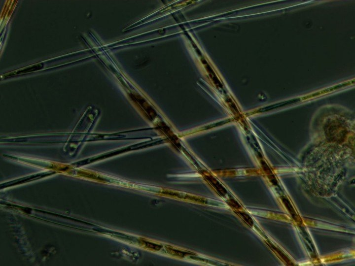 Cellular look at Pseudo-nitzschia, a harmful algal bloom that is threatening health of humans, marine mammals by creating toxins in filter feeding fish and shellfish (Credit: NOAA).