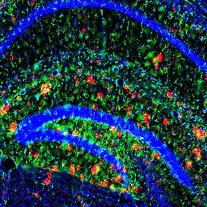 A new study reveals that the brain's ability to clear the main ingredient of Alzheimer's plaques slows with age (the plaques are red in this image). The findings could help explain why risk of the disease increases with age. Image credit: John Cirrito