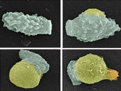 A spore of the deadly human fungal pathogen Cryptococcus (green) germinates into a yeast (yellow). Germination takes about 16 hours. Afterwards, the new yeast begins to reproduce by forming a bud (orange). Image credit: Christina Hull