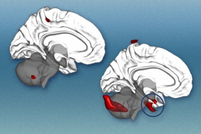By analyzing brain regions, researchers can predict clinical responses to cognitive behavioral therapy in patients with social anxiety. These illustrations represent the brain of someone with social anxiety. On the left brain, in red, are empirically-defined seed regions. On the right brain, red clusters identify brain regions that, when compared with the seed regions, helped predict the effectiveness of cognitive behavioral therapy. The blue circle highlights bilateral inferior temporal/amygdala clusters.