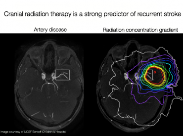 An image of a diseased artery in a childhood cancer patient overlaid with their radiation therapy concentrations. While the exact mechanisms are unknown, scientists think that high doses of radiation cause the blood vessels to constrict.