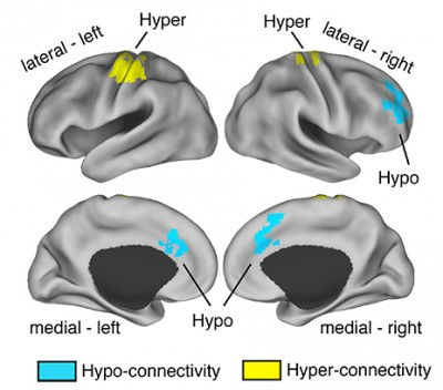 The areas in blue represent low level of connectivity between thalamus and prefrontal cortex, while the areas in yellow show excess connections in those at risk of schizophrenia.