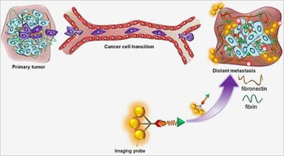 Metastasis occurs when cells are shed from primary breast cancer tumor and establish a new tumor at a distant site. For early detection of the metastasis with MRI, the Lu Lab developed a probe that binds to fibrin-fibronectin protein complexes in high-risk tumors. Fibronectin is expressed in high-risk (aggressive) cancer and not in normal tissue, so MRI imaging is able to distinguish metastases from normal tissue.