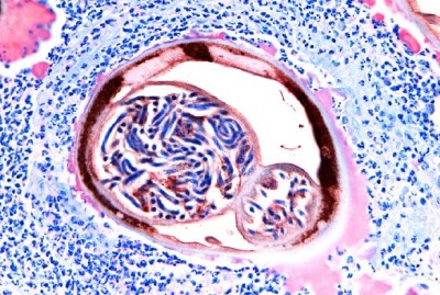 A cross-section of an adult female worm containing the larvae that causes river blindness.