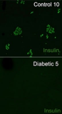 Diabetic dogs had a sharp loss of insulin-producing beta cells compared to non-diabetic dogs.