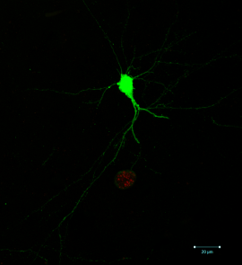 A single infected neuron. The ability to identify which neurons are infected, and which part of the neuron is infected, relies on the parasite-induced expression of green fluorescent protein in the neuron as well as the expression of a red fluorescent protein by the parasites themselves. Image credit: Anita Koshy