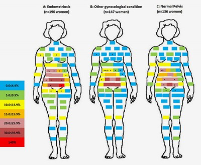 Women were asked to indicate on a diagram the areas where they felt pain. The color-coded blocks show the number of women reporting pain, ranging from the least pain (top block) to the most pain (bottom block). Most women reported pain in the pelvic-abdominal area. The greatest number of women reporting pain in the pelvic-abdominal area were those later diagnosed with endometriosis. Image credit: Human Reproduction