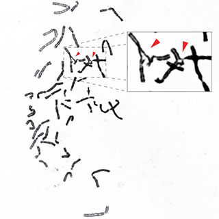 Put to the test: To confirm that a defect in RAD51 interfered with cells' ability to fix misplaced links between DNA strands, researchers treated patient cells with an agent to cause such links to form. The cells failed to repair them, producing broken chromosomes that fused with one another (red arrows).