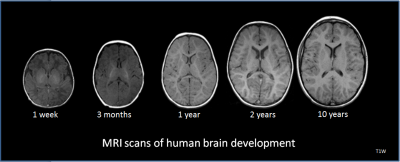 Social and medical scientists will conduct a 10-year study of how young brains develop and grow. Image credit:  National Institutes of Health, Wikimedia commons