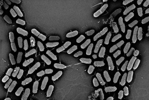 E. coli comes in a large number of varieties. Image credit: Edward Dudley/Penn State