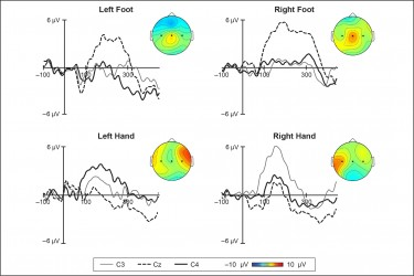 In a recent experiment, 7-month-old babies wore caps fitted with sensors that record brain activity. The study found that touches to infants' hands and feet resulted in different patterns of activity in the part of the brain that processes touch.Adapted from Saby et al. / Neuroimage 2015