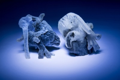 New system from MIT and Boston Children's Hospital researchers converts MRI scans into 3D-printed heart models (shown here). Photo credit: Bryce Vickmark