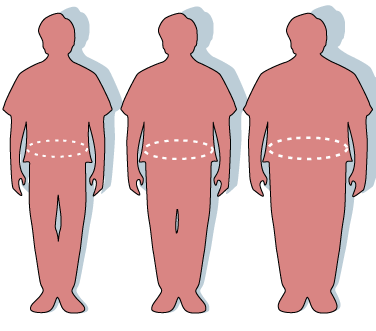 Illustration of obesity and waist circumference. Image credit: Report of the Dietary Guidelines Advisory Committee on the Dietary Guidelines for Americans, 2000.