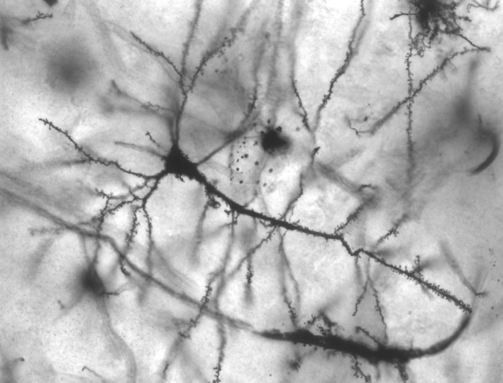 Neurons have a distinctive branching shape, given by dendritic arbors. Even though they have been known for more than a century, only now scientists have discovered what substances help neurons form these branches and it could leave to novel therapies in the future. Image credit: MethoxyRoxy via Wikimedia, CC BY-SA 2.5