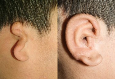 Children with under-formed or missing ears can undergo surgeries to fashion a new ear from rib cartilage, as shown in the above photo. But aspiring surgeons lack lifelike practice models. Image credit: University of Washington