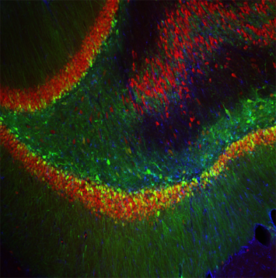The green cells show where the researchers used an injected virus to block production of FGF9 in rat brains -- and reduce anxiety-like behavior.