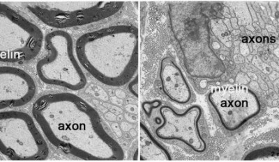 In normal nerves (left), which have proteins called prohibitin, axons have thick myelin coatings (black outlines). In contrast, nerves engineered to lack prohibitin in glial cells have axons with very thin myelin or none at all (right). Image credit: M. Laura Feltri et al