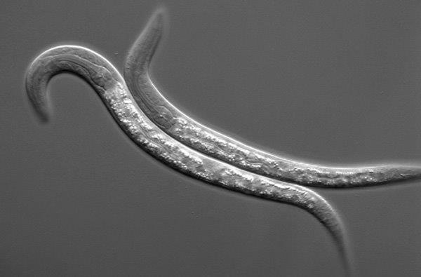 Examining worm metabolism has yielded new insights into why some live longer than others. Credit: National Institutes of Health