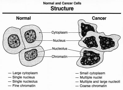 Normal And Cancer Cells Structure. Image credit: National Cancer Institute, Wikimedia Commons
