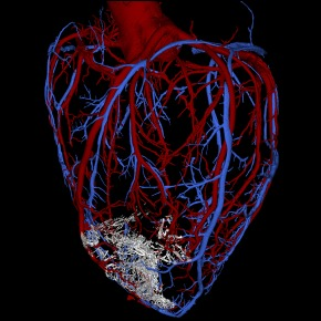 The graft (white area) is visible in this image of the primate heart's vasculature. Image credit: Murry Laboratory