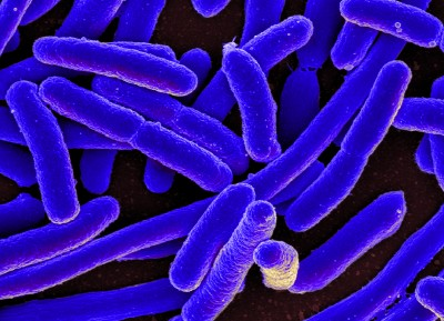 E. coli. Image credit: NIAID, Wikimedia Commons