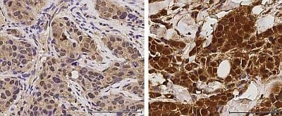 Left image: Primary tumour, Right image: Recurrent tumour. The images show a higher level of phosphorylated IRAK1 in a recurrent tumour compared to that in the original primary tumour.