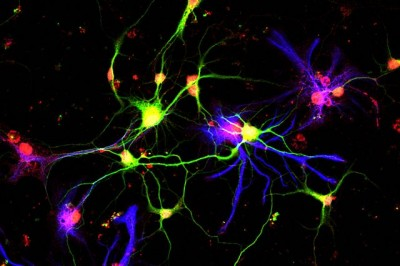 Neurons (in green) producing growth differentiation factor 10 (red), a molecule discovered by UCLA scientists that previously had no known role in the adult brain. Image credit: S. Thomas Carmichael