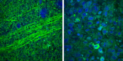 Images collected using an SRS microscope show that normal brain contains sparse cells with bundles of nerve fibers, called axons (left), but brain tumor tissue is full of cells in a disordered pattern (right). While you can see the difference on a microscopic scale, during surgery they'd be difficult to differentiate, making it hard for a surgeon to know where the tumor stops.