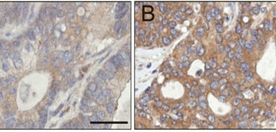 Higher levels of PAT4 in colorectal cancer tumours (brown staining in B) are linked to worse patient outcome. Image courtesy of Oxford University