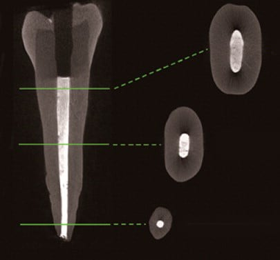 A new root canal filler containing nanodiamonds could help prevent re-infections. Credit: American Chemical Society