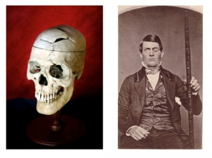 Cracked skull of Phineas Gage