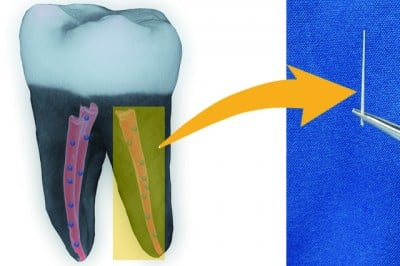 A 3-D image of a tooth filled with nanodiamond-enhanced gutta percha, and an individual gutta percha point. Image credit: American Chemical Society/Dong-Keun Lee