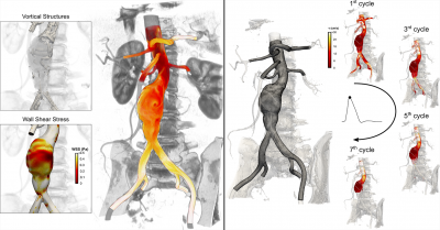 Left: Computer simulation of the hemodynamics in AAA. On the right, brighter color tones are assigned to blood borne particles that have experienced high shear history. Researchers of the Continuum Biomechanics Lab integrate this information with other hemodynamic metrics (such as wall shear stress) to investigate the reasons why thrombus forms in aneurysms.; Right: Particle tracking analysis in AAA. On the left, high resolution mesh whose nodal coordinates are used as initial locations for particle injections. On the right, progressive backward in time advection of particles for seven cardiac cycles. Snapshots are taken at peak systole and particles are colored based on velocity magnitude values. Image credit: TACC