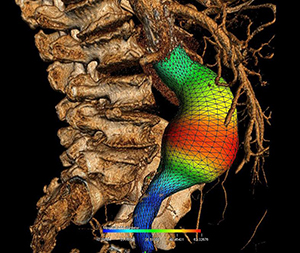 Three-dimensional reconstruction of an abdominal aortic aneurysm with colour representation of its diameter. Image credit: CRCHUM.