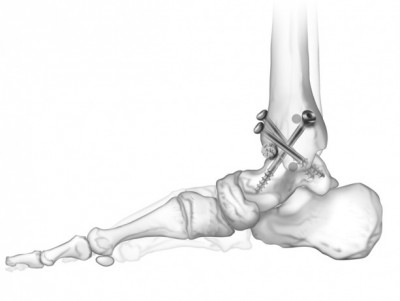 This illustration shows medial view of one approach to ankle-fusion surgery. Image credit: Kate Sweeney, University of Washington