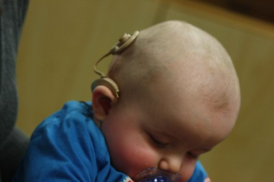 Babies' with profound hearing loss who received cochlear implants to improve their hearing soon babbled as often as their hearing peers, an MU researcher found. Image credit: Bjorn Knetsch from The Netherlands