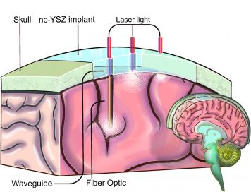 "Illustration showing how ""window to the brain"" implant would work."