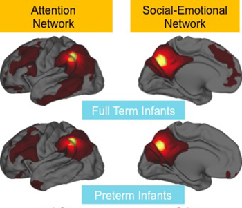A comparison of brain scans from babies born at full term and at least 10 weeks prematurely shows differences in the activity of brain networks. The red and yellow areas represent coordinated activity. In preemies, the red areas are smaller due to less coordinated activity between these regions. Image credit: Washington University