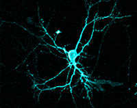 Optogenetics uses light to control neurons and other electrically excitable cells. mage credit: Ute Hochgeschwender, Central Michigan University