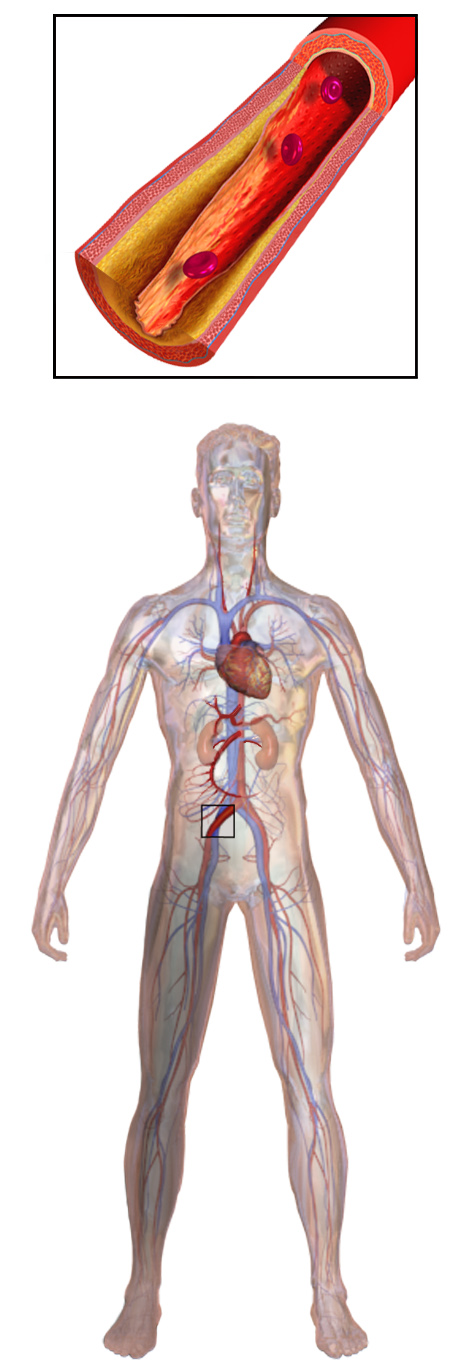 "The peripheral artery disease causes pain in the limbs, as it reduces blood flow. It can lead to pain, limb loss of even death, but, even though there may be genetic caused for the disease, healthy diet and physical exercise may help prevent this condition. Image credit: Blausen.com staff. ""Blausen gallery 2014"". Wikiversity Journal of Medicine. DOI:10.15347/wjm/2014.010. ISSN 20018762"