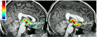 Placebo power: When the researchers gave depressed people a placebo and told them it might help their symptoms, they saw changes in brain chemistry (left) in patients who responded to the placebo pill, in the areas  of the brain involved in emotional regulation. Those same brain changes were also observed in patients who responded to  a real antidepressant (right).