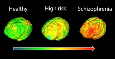 PET imaging signal in healthy volunteers, high-risk subjects and patients with schizophrenia showing elevation in immune cell inflammation as severity of illness increases. Image courtesy of King's College London