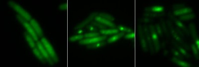 Isolated bright spots show double-strand DNA breaks fatal to bacteria. More are evident in the middle (treated with hydrogen peroxide) and the right (treated with norfloxacin) than in the untreated E. coli on the left. Image credit: Belenky lab/Brown University