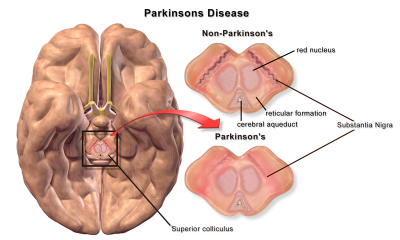 Parkinson's Disease. Image credit: BruceBlaus, Wikimedia Commons