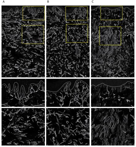 """In control skin from the hip (A) and normal-appearing skin from the abdomen (B), elastic fibers responsible for skin elasticity are intact, forming an intricate mesh-like network. In stretch marks that have recently formed during pregnancy (C), elastic fibers are lost and replaced by disorganized, thin fibrils, or """"strands,"""" that persist without forming a normal elastic network. The middle and bottom panels magnify the identified areas of the top panels."""