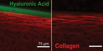 Cartilage samples were incubated in a fluorescein-tagged hyaluronic acid (HA) solution and viewed with a confocal microscope. Cartilage with lubricin bound to the surface, on the left, facilitated HA aggregation, while HA did not aggregate near cartilage without lubricin, on the right. Image credit: Cornell University