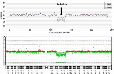 Detection of chromosomal deletion by NIPT using maternal blood plasma (top) is similar to detection with the traditional method using fetal tissue (bottom). Image credit: UC San Diego