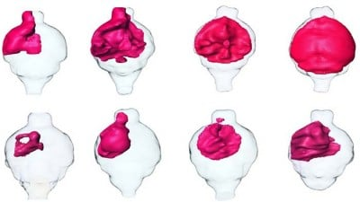 MRI renderings of mouse brain tumors. Tumors treated with SKOG102 (lower panels) shrank by about half compared to tumors treated with a control (upper panels). Image credit: UC San Diego
